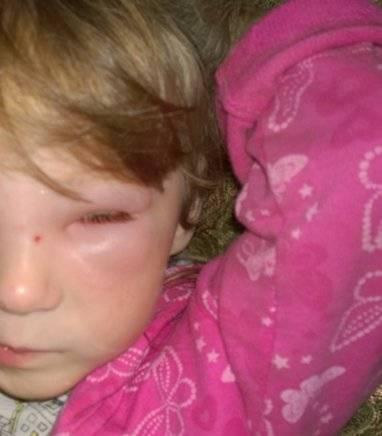ребенка в глаз укусила мошка что делать