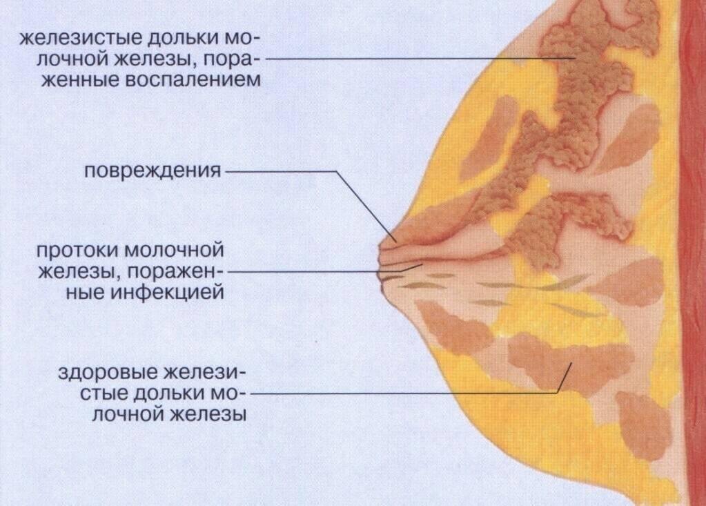 Мастит у кормящей матери — симптомы и лечение, фото, профилактика