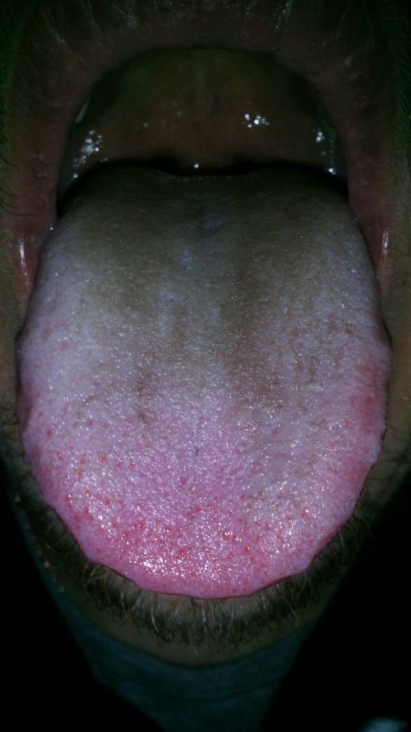Стафилококк в горле: причины возникновения, симптомы и лечение