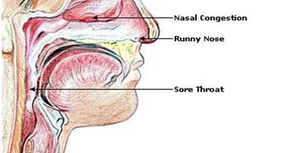 мокрота в носоглотке лечение