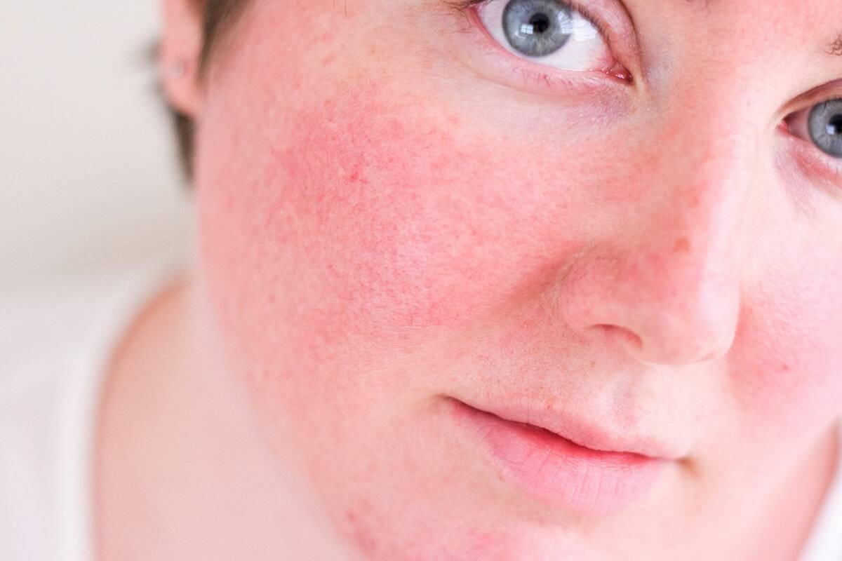 Как лечить солнечный дерматит в домашних условиях. солнечный дерматит у детей: лечение и профилактика