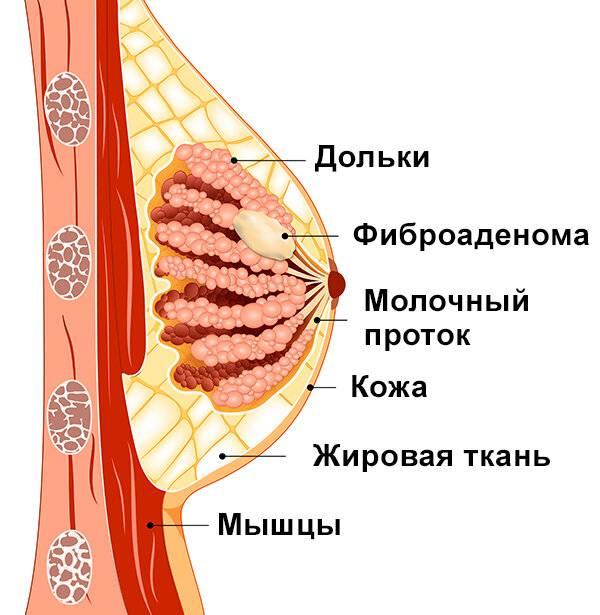 Фиброаденома молочной железы: лечение без операции