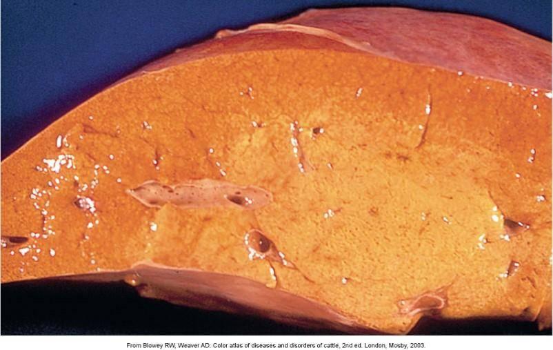 признаки жировой дистрофии печени