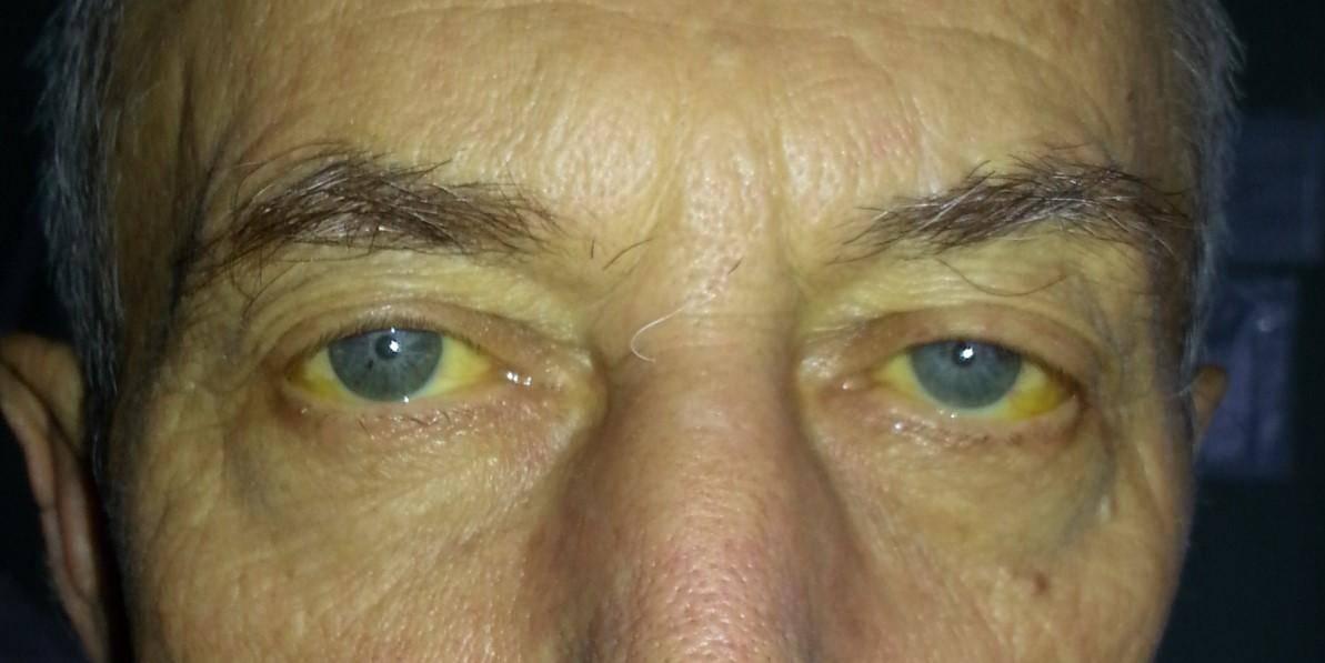 Желтуха: симптомы у взрослых, признаки, причины, лечение