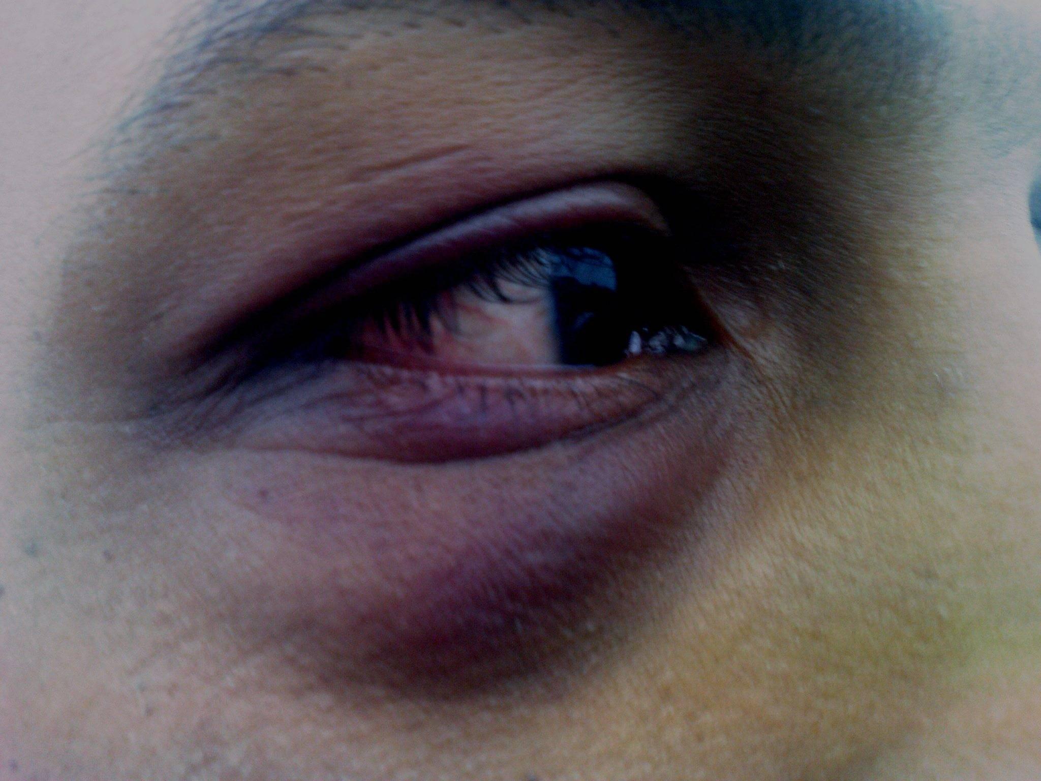 Проявление контузии глазного яблока