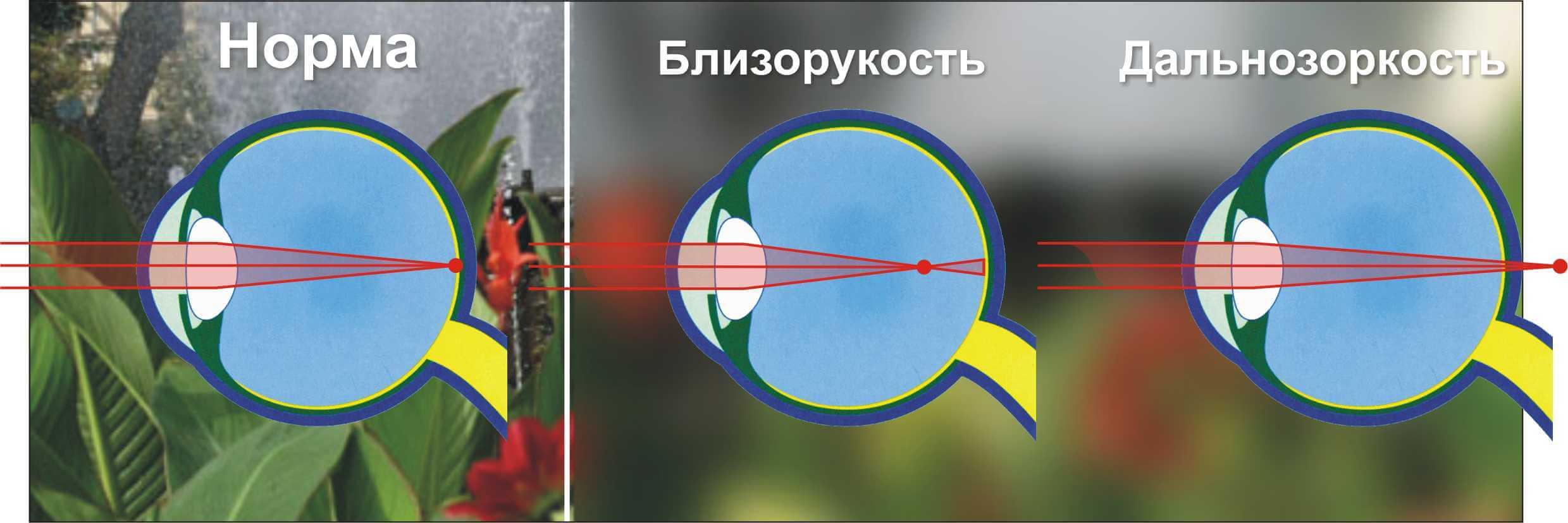 Чем близорукость отличается от дальнозоркости