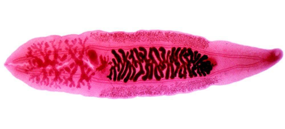 Клонорхоз - симптомы болезни, профилактика и лечение клонорхоза, причины заболевания и его диагностика на eurolab
