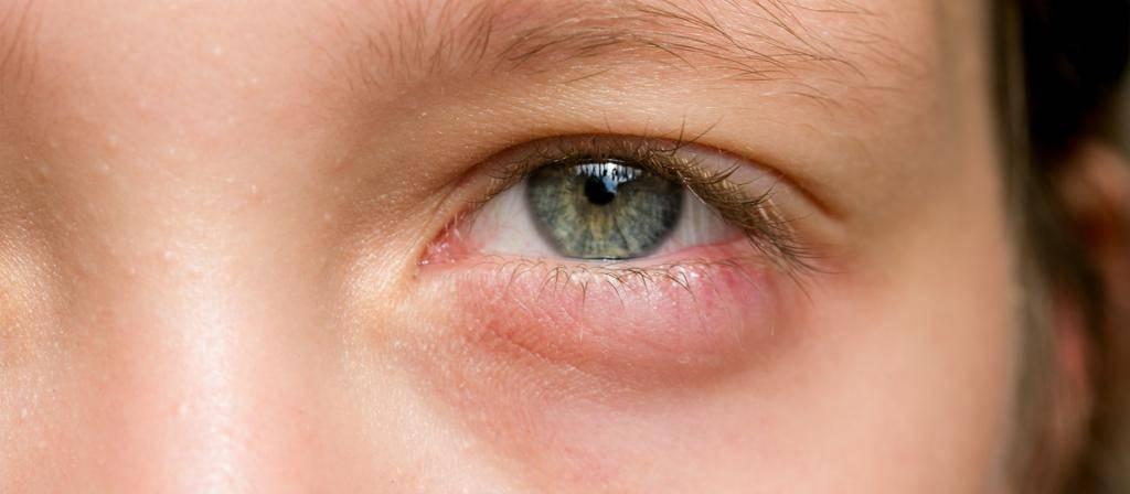 Сильно болит веко глаза