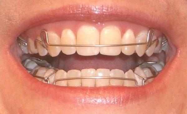 пластинки зубные