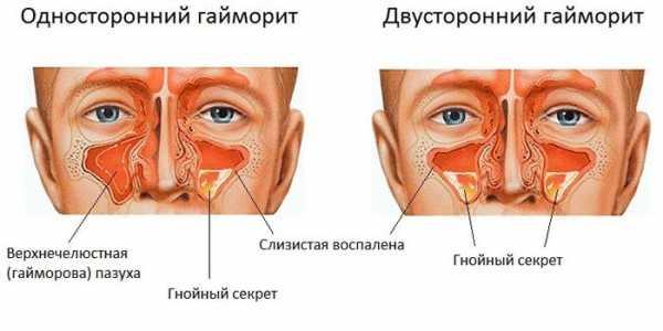 Как вылечить гайморит у взрослых: основные методы, отзывы