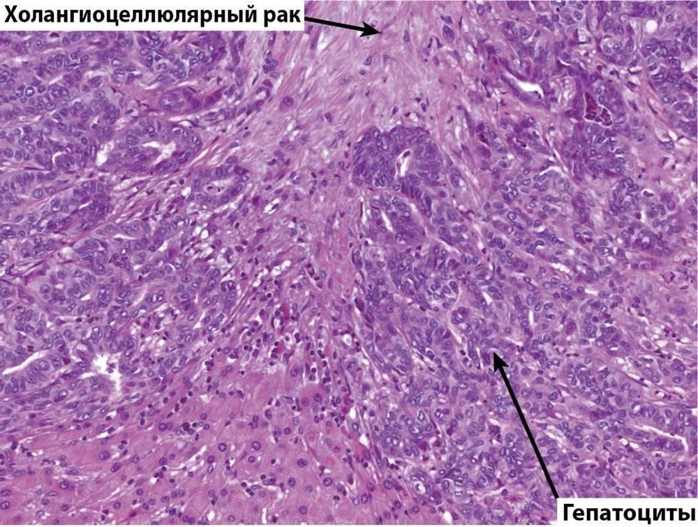 холангиокарцинома печени