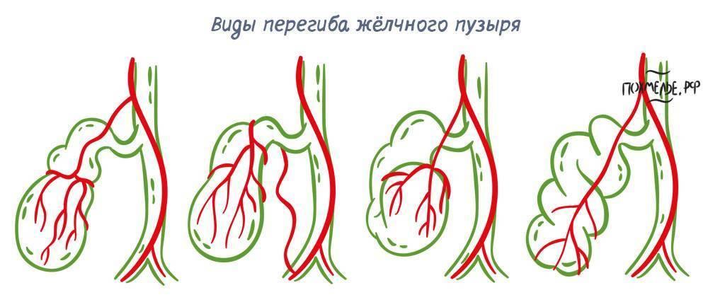 s образный перегиб желчного пузыря