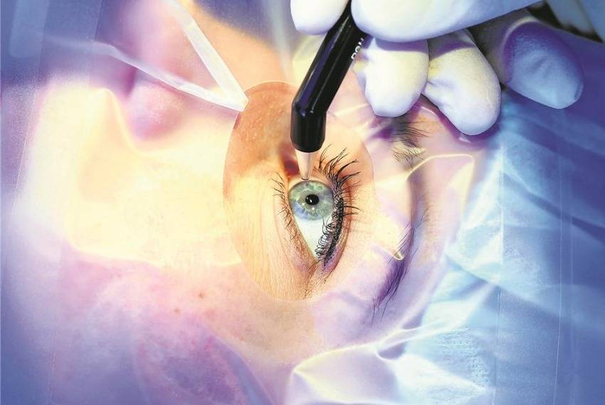 Лазерная коррекция зрения. стоимость лазерной коррекции зрения в москве