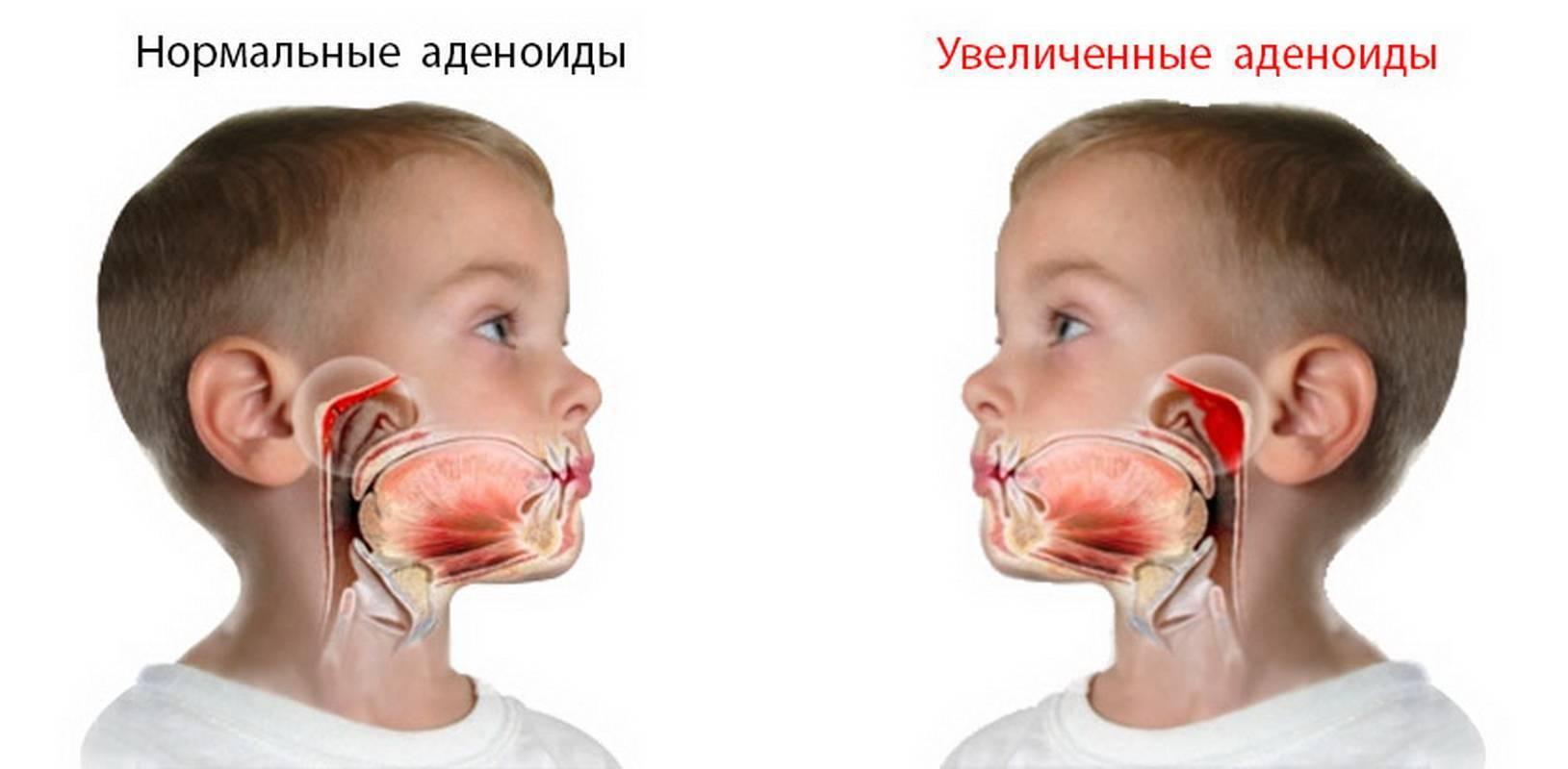 как лечить аденоидит у детей