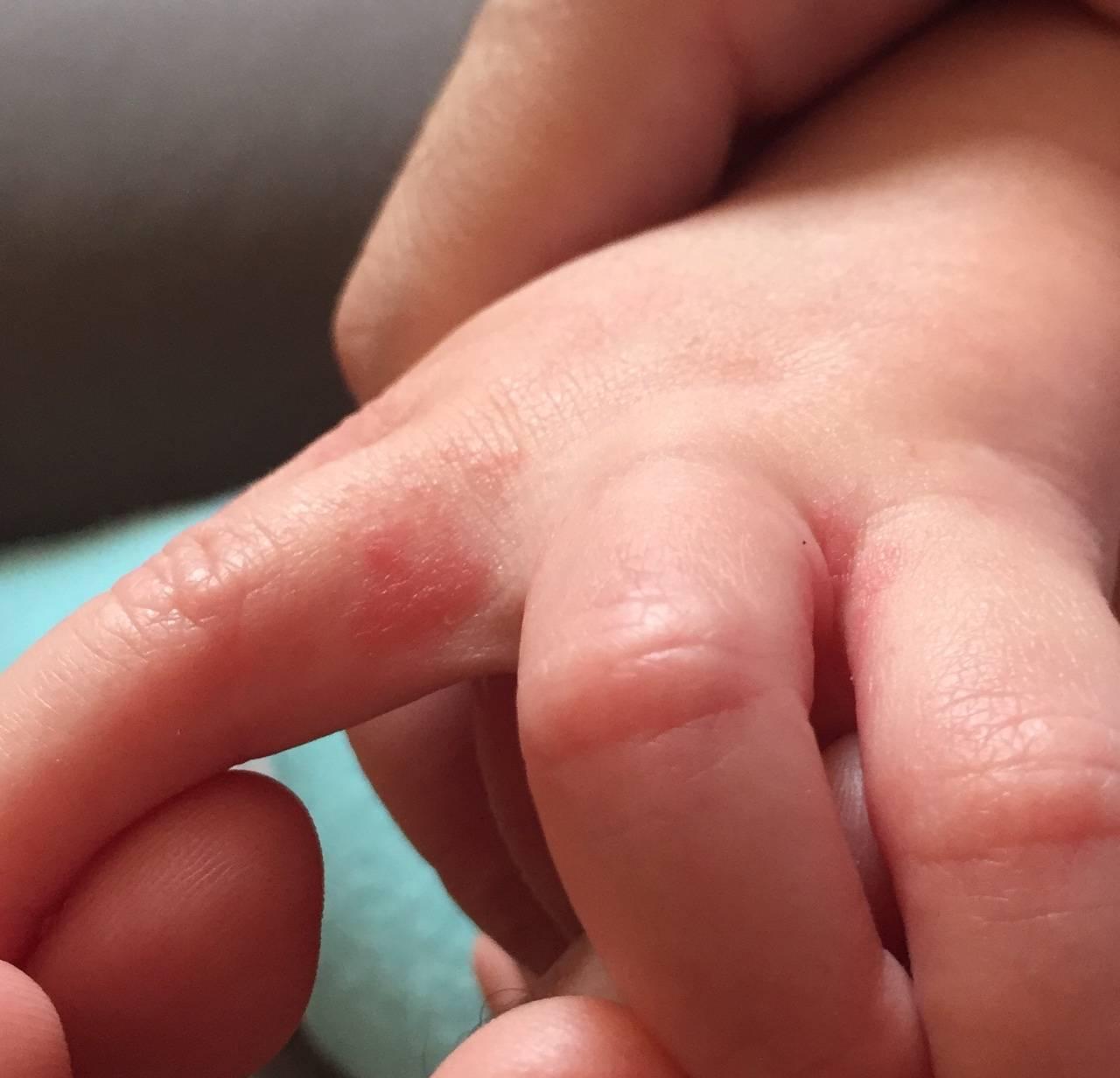 Дерматит на ладонях у ребенка