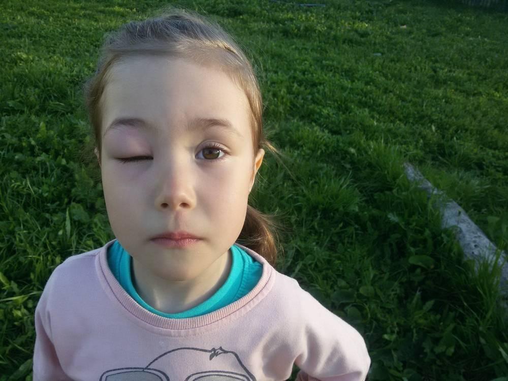 у ребенка опух глаз после укуса мошки