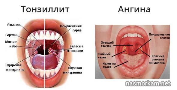 Нужно ли удалять миндалины при хроническом тонзиллите
