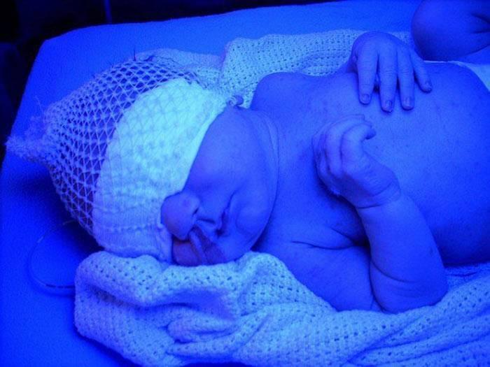 фототерапия для новорожденных при желтухе сколько длится