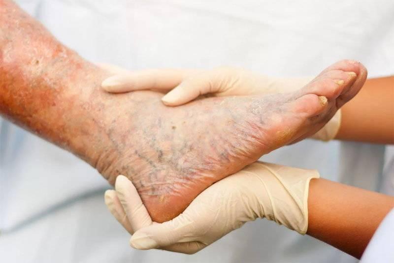 Атеросклероз – возможные осложнения, методы их лечения и профилактики
