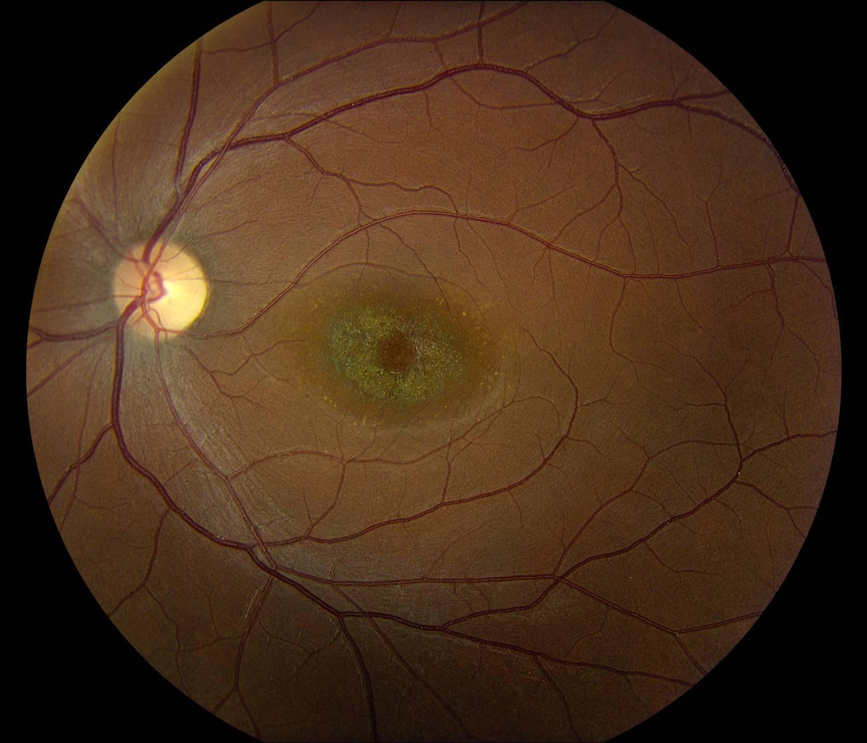 Что такое атрофия сетчатки глаза — причины и лечения