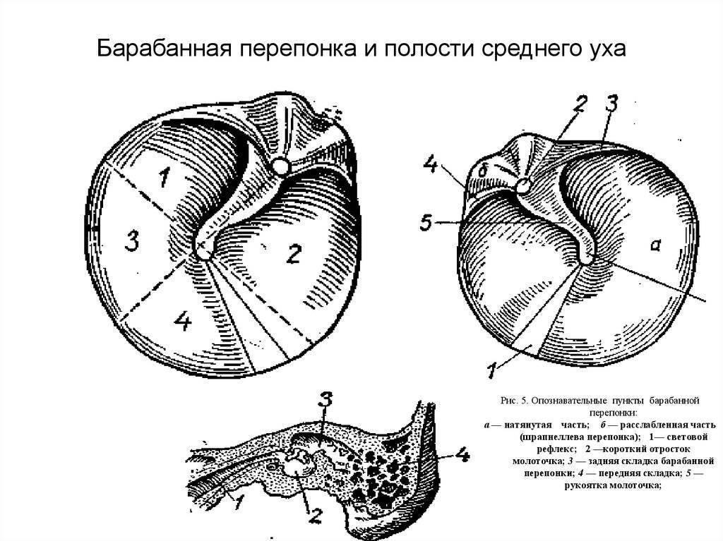 Травматическая перфорация барабанной перепонки и ее лечение