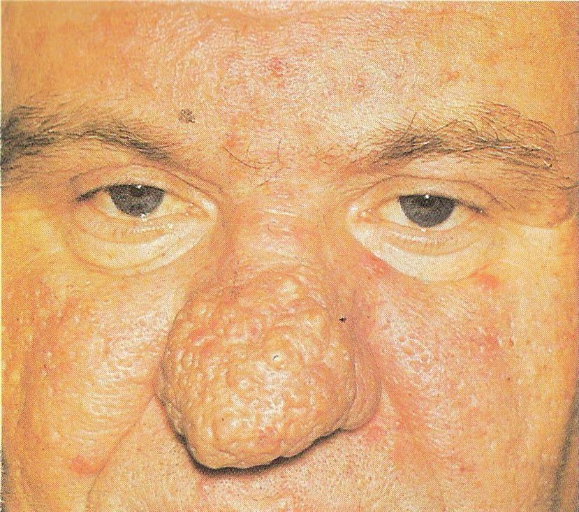 Болезнь печени симптомы проявление на коже фото