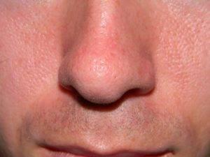 Особенности появления пятен в области носа: что влияет на возникновение дерматологического заболевания, диагностика заболевания и лечение