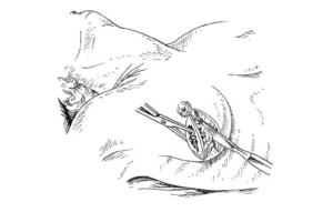 Удаление фиброаденомы молочной железы: показания, виды и ход операции, реабилитация