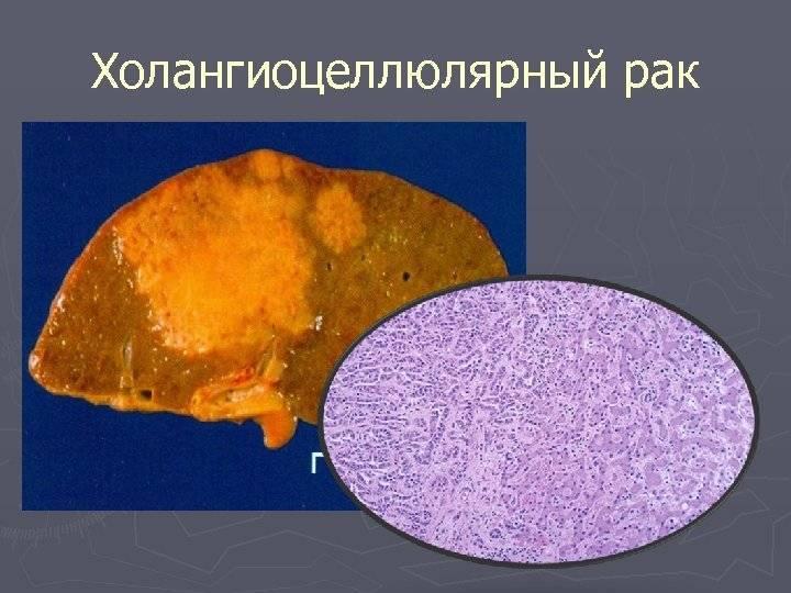 Холангиокарцинома - cholangiocarcinoma - qwe.wiki