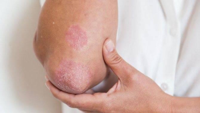 псориаз начальной стадии лечение