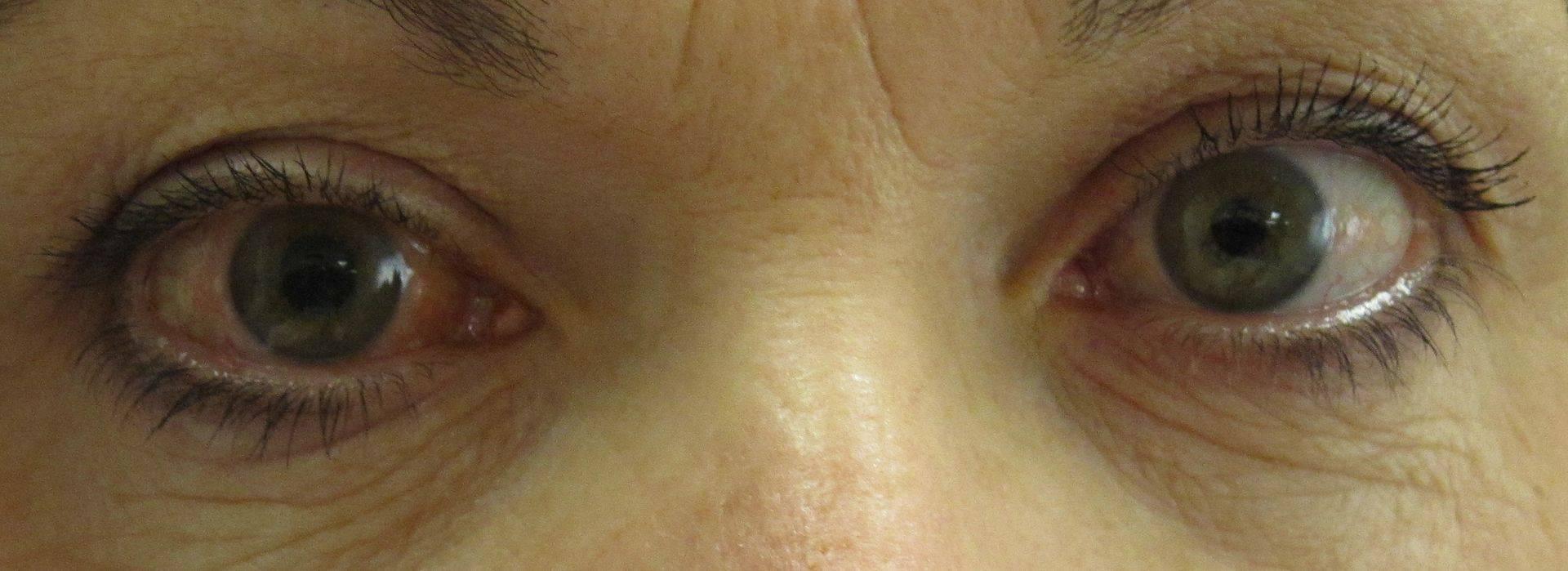 Глаукома - что это такое? описание заболевания, причины, симптомы, диагностика и лечение