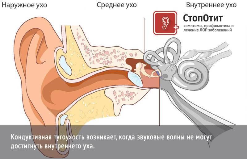 Тугоухость   симптомы   диагностика   лечение - docdoc.ru