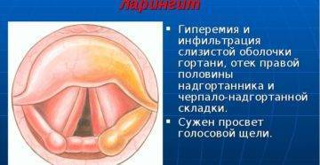 Заболевания горла и гортани, как должно выглядеть здоровое горло