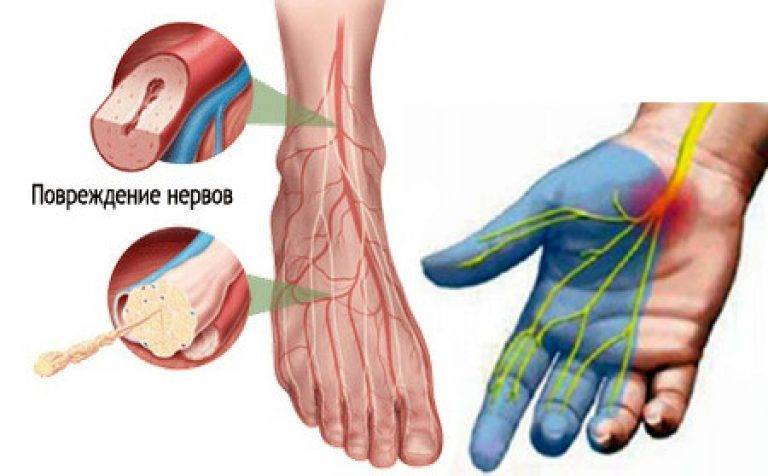 Диабетическая полинейропатия - виды, стадии и лечение