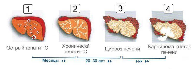 Как меняется температура тела при гепатите