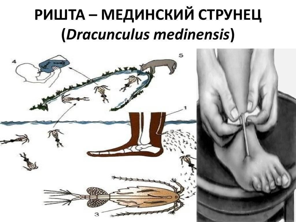 Жизненный цикл и морфология червя ришта: симптомы и лечение дракункулеза