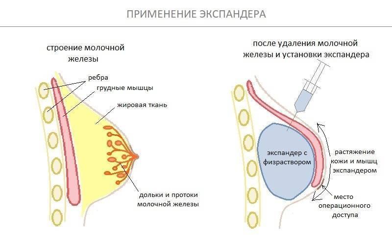 Рожистое воспаление при раке молочной железы