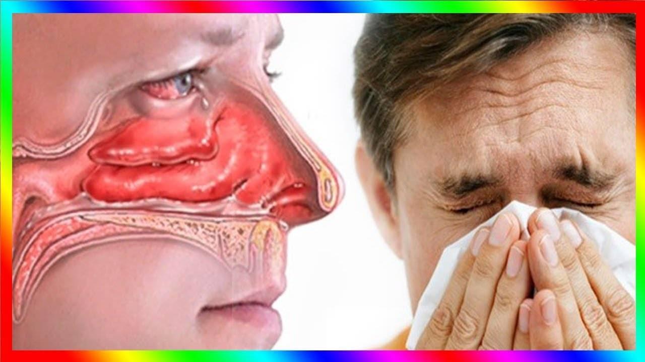 8 неочевидных причин, почему заложен нос или текут сопли