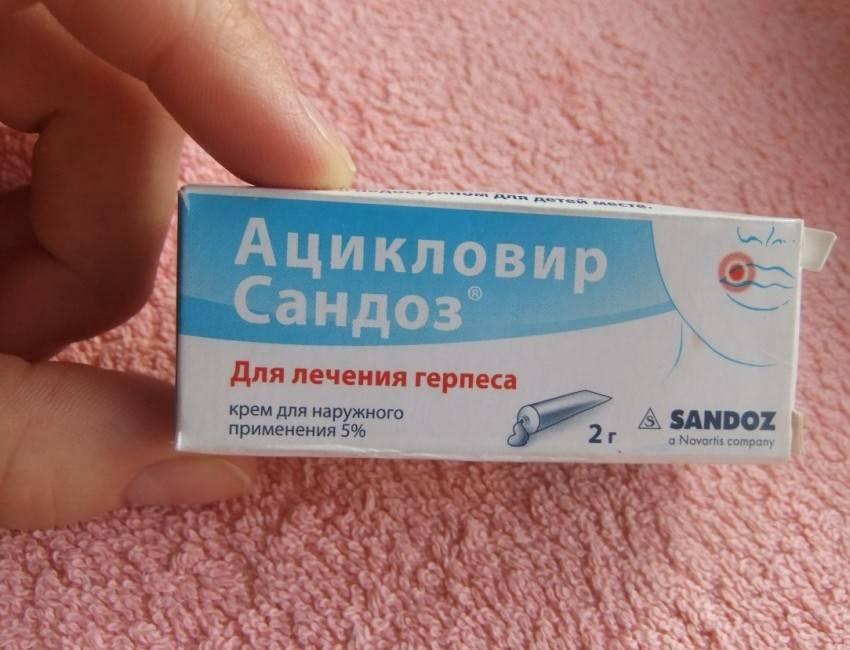 Лечение болей (невралгия) после опоясывающего лишая