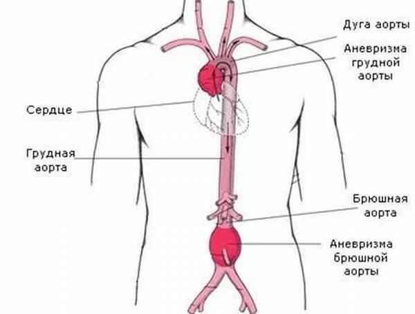 атеросклероз брюшной аорты лечение