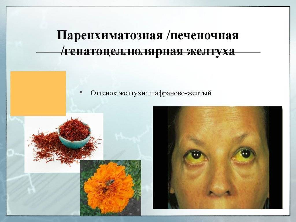 Паренхиматозная желтуха (печеночная) – патогенез, причины, признаки паренхиматозной желтухи