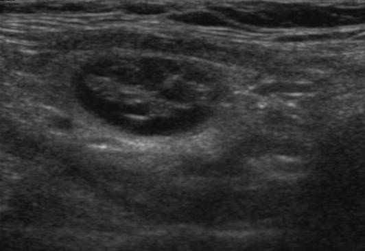 Узлы щитовидной железы. причины, симптомы, признаки, диагностика и лечение патологии :: polismed.com