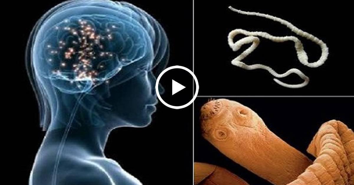 О мозговых паразитах у человека: симптомы, лечение, профилактика