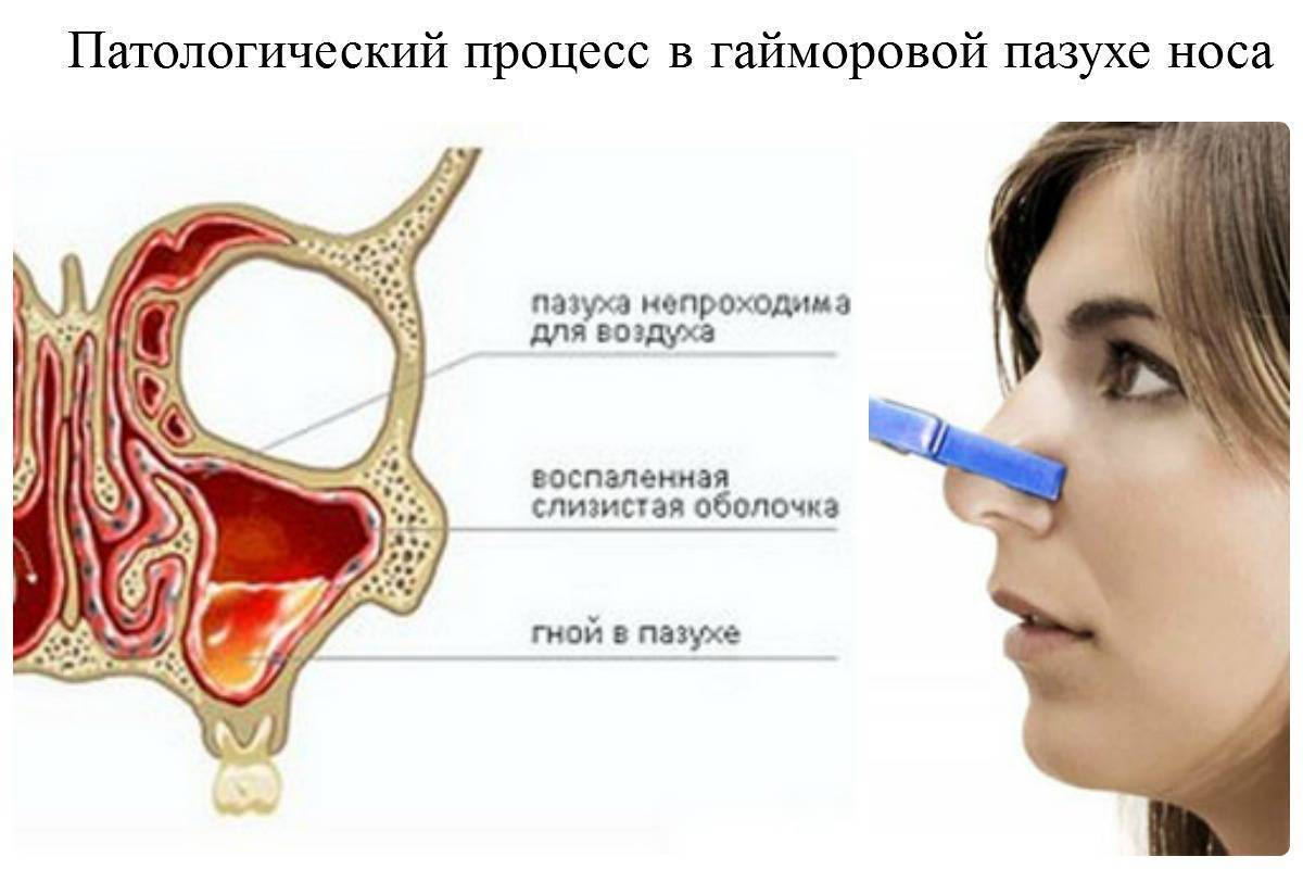 Запах из носа: какой он бывает?
