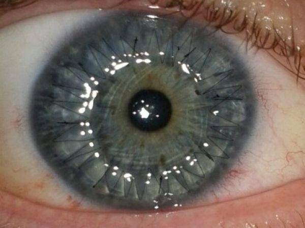 Капли для регенерации и заживления роговицы глаза