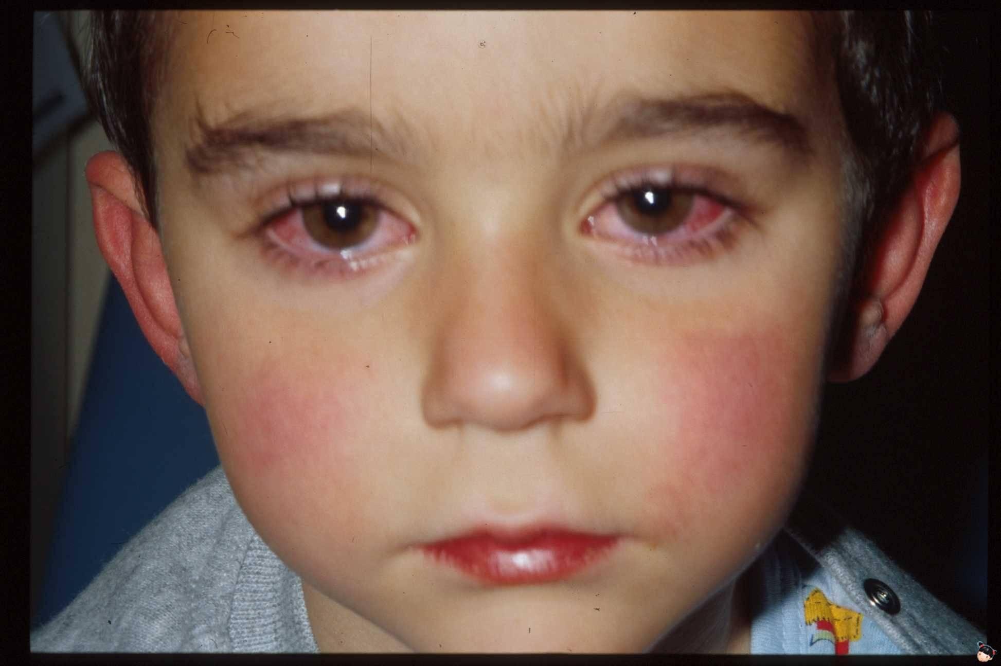 воспаление глаза у ребенка