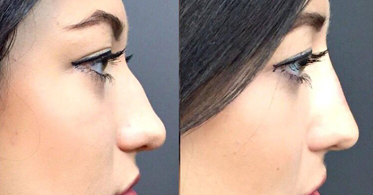 исправить форму носа без операции
