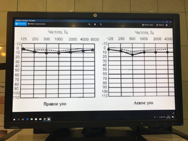 Аудиограмма слуха: что это такое, норма, расшифровка