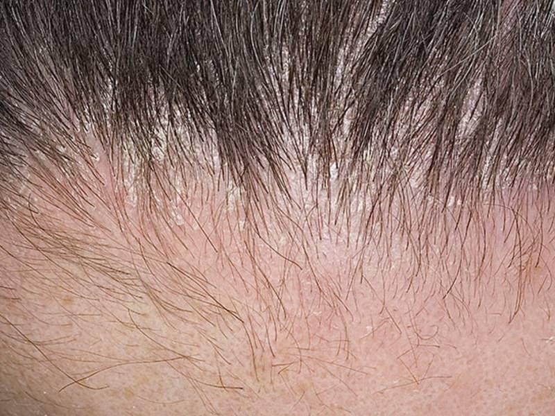 себорейный дерматит головы