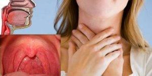 Першит в горле и сухой кашель: лечение. препараты и народные средства